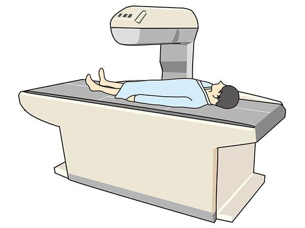 骨塩定量測定装置のイラスト